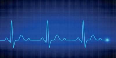 Electrocardiogramas en Bogotá