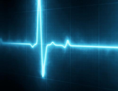 Frecuencia cardíaca ideal de tu corazón – ecocardiogramas Bogotá