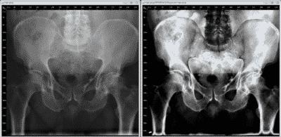Radiografía de cadera en Bogotá