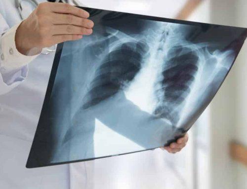 Radiografía de tórax: qué es y donde practicártela en Bogotá